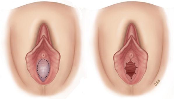 فاصله ورودی واژن تا دهانه رحم