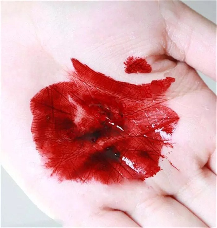 خون نیامدن در زفاف / از پرده بکارت خون نیومد / عکس دستمال خونی شب عروسی